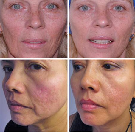 needling for acne scarring picture 10