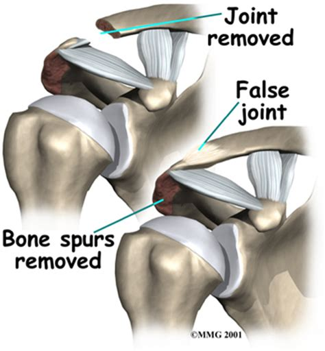 arthritis and ac joint picture 18