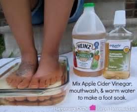 vinegar help cure toenail fungus picture 2