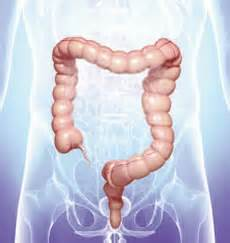 constipation and colon diseases picture 4