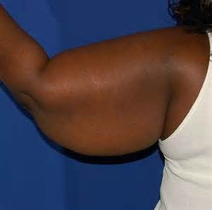 african american women with breast augmentation surgery picture 2