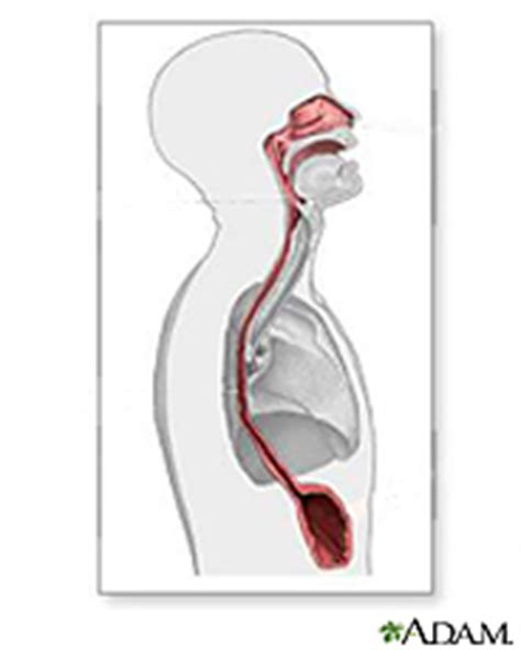diet related to achalasia picture 2