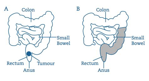 diet with colon surgery picture 17