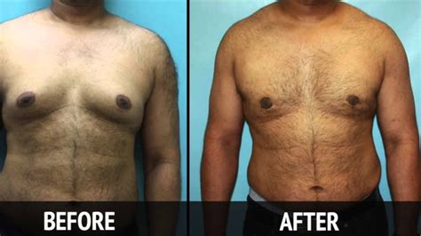 male breast reduction pill scams picture 10