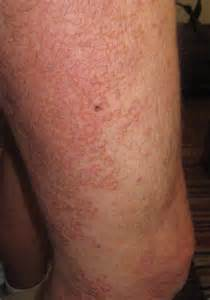 hepais itchy skin picture 10