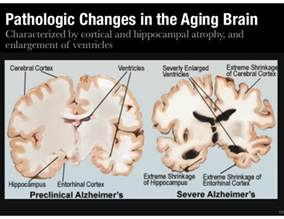 aging drugs picture 5