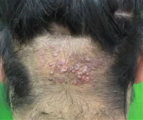 acne on the back of your head picture 6