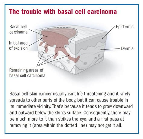 treating advanced cases of basal cell skin cancer picture 3