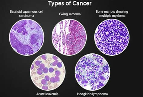 stages of bladder cancer picture 10