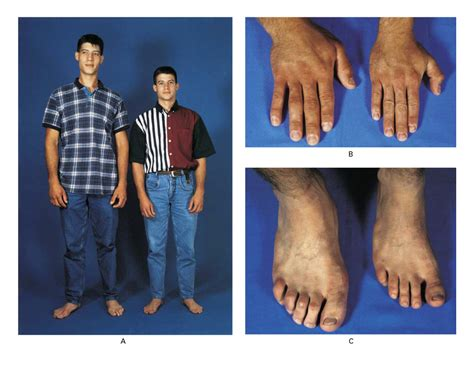 hgh human growth hormone height picture 11