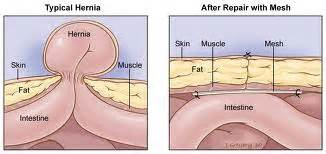 hernia after gallbladder surgery cough picture 7