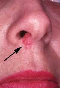 herpes outbreak on skin picture 6