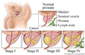 what age does prostate cancer occur picture 9