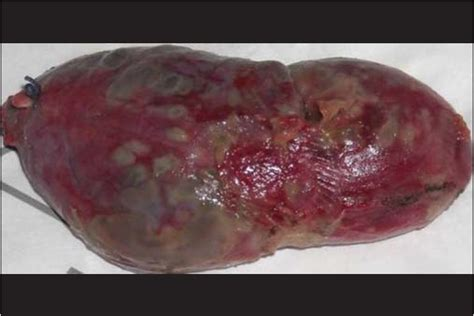 symptoms of gall bladder with gangrene infection picture 12