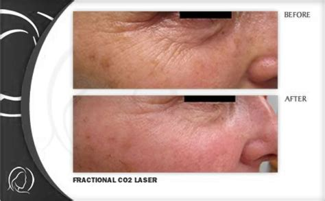 laser treatment fungus toe in florida picture 9