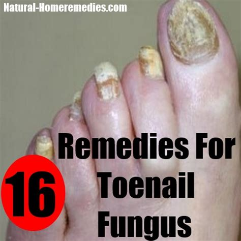vitamins for nail fungus picture 5