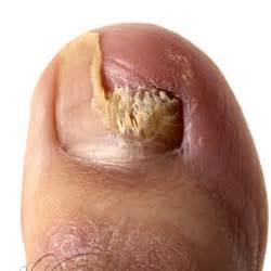 home remedies for toe nail fungus picture 2