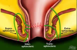 colon fistula surgery picture 7