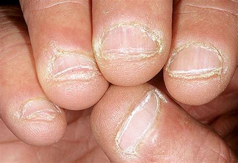 treating nail fungus picture 7