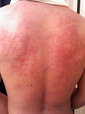 herpes outbreak on chest picture 13