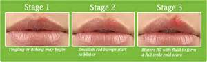 herpes cold sore contagion picture 9