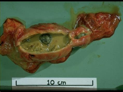 importance of the gall bladder picture 1