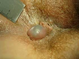strangulated hemorrhoids - pictures picture 1