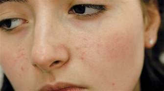 acne dark spots picture 10