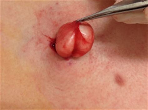 how to dissolve small cysts on skin picture 7