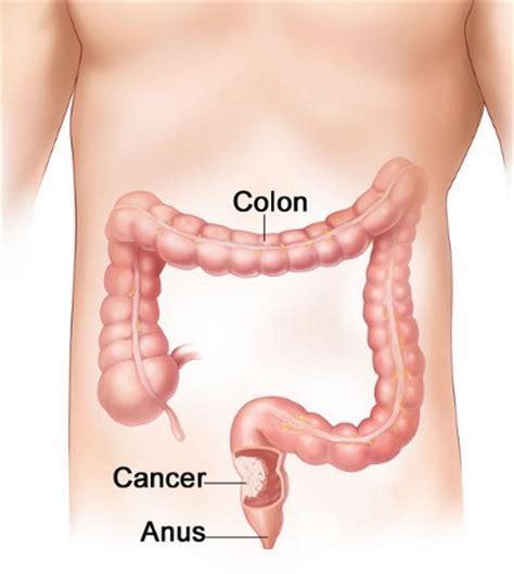 colon cancer surgery prognosis picture 2