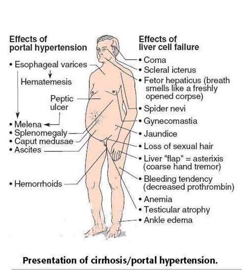 gamot sa fatty liver treatment picture 13