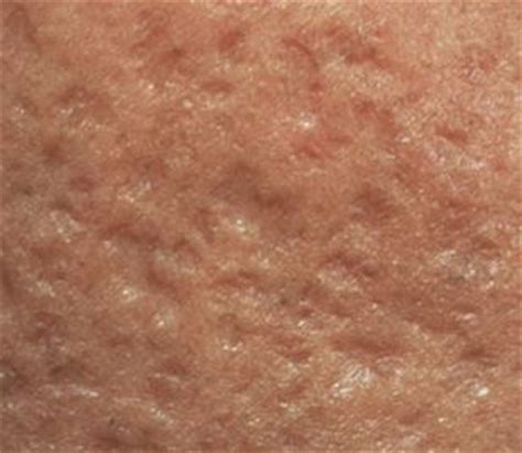 what can i do about acne picture 11