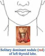 goiter on left lobe of thyroid picture 7