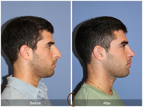 cost of male nose enhancement in the philippines picture 2