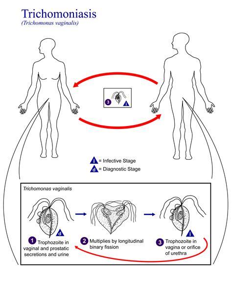 trangkaso symptoms picture 14