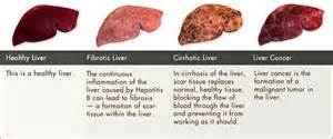 hepa is b liver damage picture 6