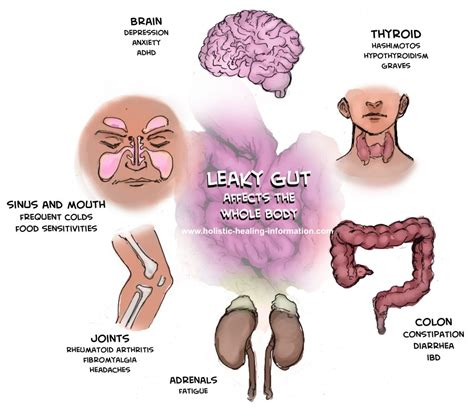 what are the symptoms of colon leaking picture 11
