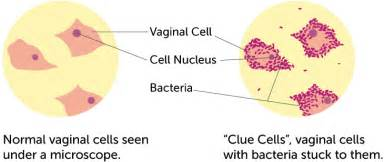 vaginal bacterial vaginitis picture 5