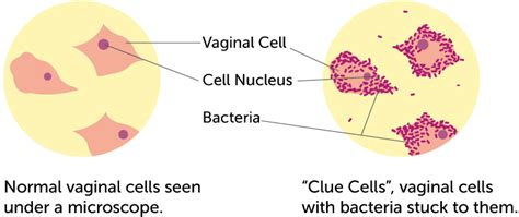 what are the symptoms of bacterial vaginosis picture 3
