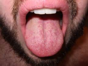 white dots tongue from herpes simplex picture 4