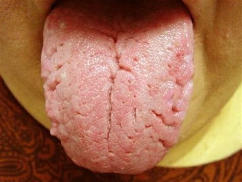 treat a yeast infection with yogurt picture 5