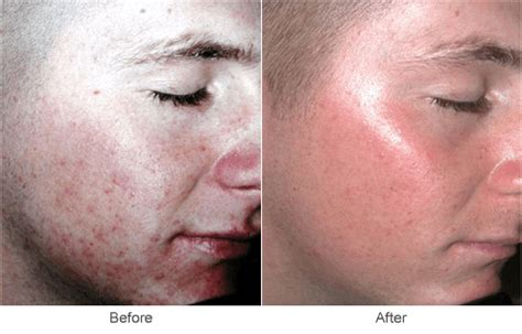 co2 laser treatment for acne scars picture 11