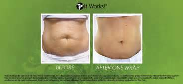 stomach gel wraps picture 5