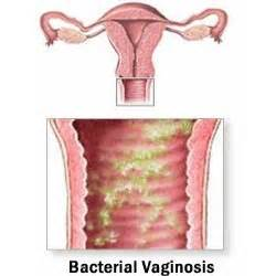 bacterial vaginoses picture 1