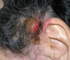 bruising and hair loss picture 1