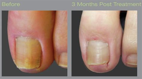 pinpoint laser for nail fungus in seattle picture 6