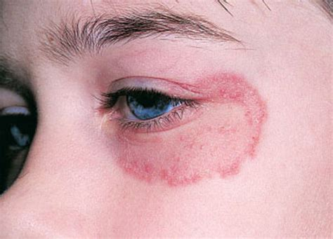 bacterial eye infections picture 3
