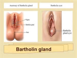 herbs that clean the bartholin gland picture 4