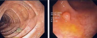 small colon polyp picture 11