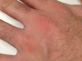 pictures of skin diseases on humans picture 10